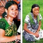 Sonali Mukherjee Acid Victim